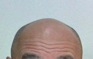 額と頭の境界線はどこにあるのだろうか