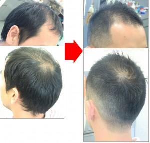 短髪にして立たせることで頭頂部の髪の薄さがマイルドになる